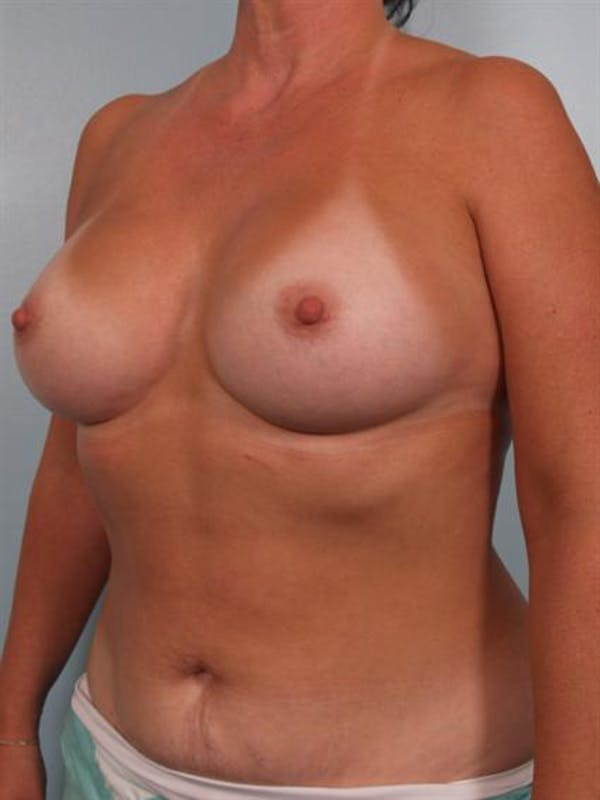 Breast Augmentation Gallery - Patient 1310262 - Image 6