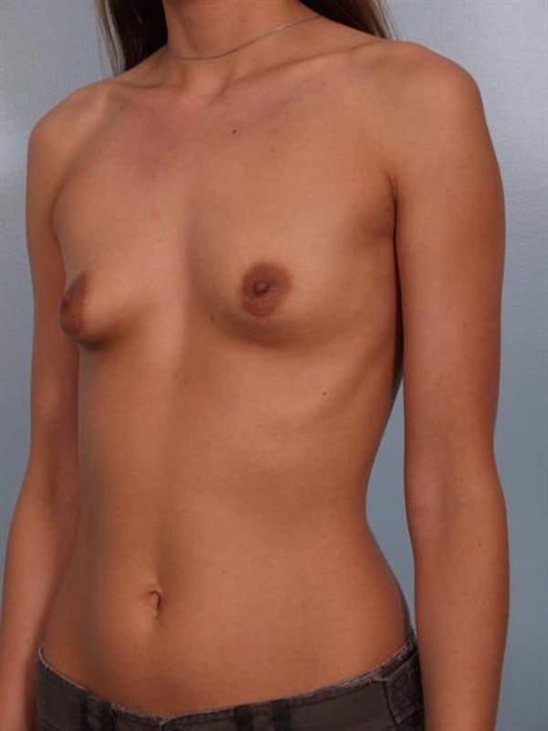 Breast Augmentation Gallery - Patient 1310263 - Image 1