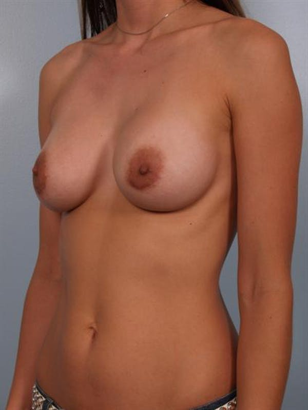 Breast Augmentation Gallery - Patient 1310263 - Image 2