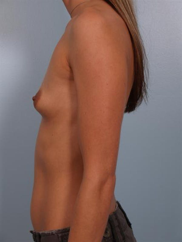 Breast Augmentation Gallery - Patient 1310263 - Image 3