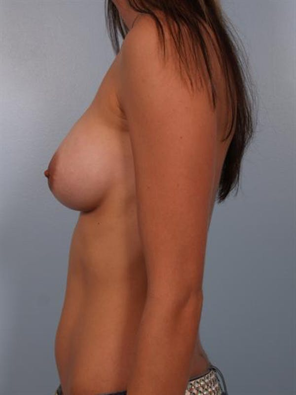 Breast Augmentation Gallery - Patient 1310263 - Image 4