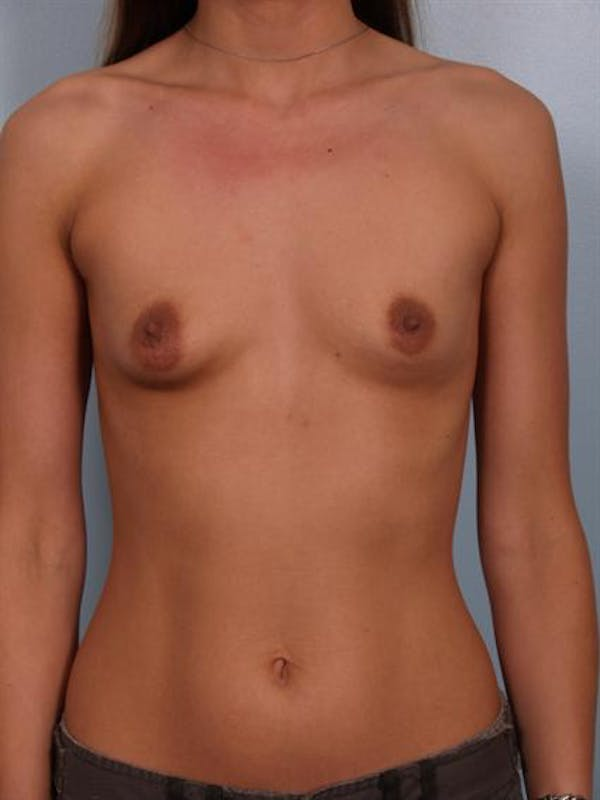 Breast Augmentation Gallery - Patient 1310263 - Image 5
