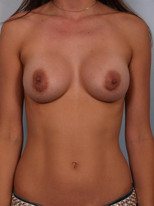 Breast Augmentation Gallery - Patient 1310263 - Image 6