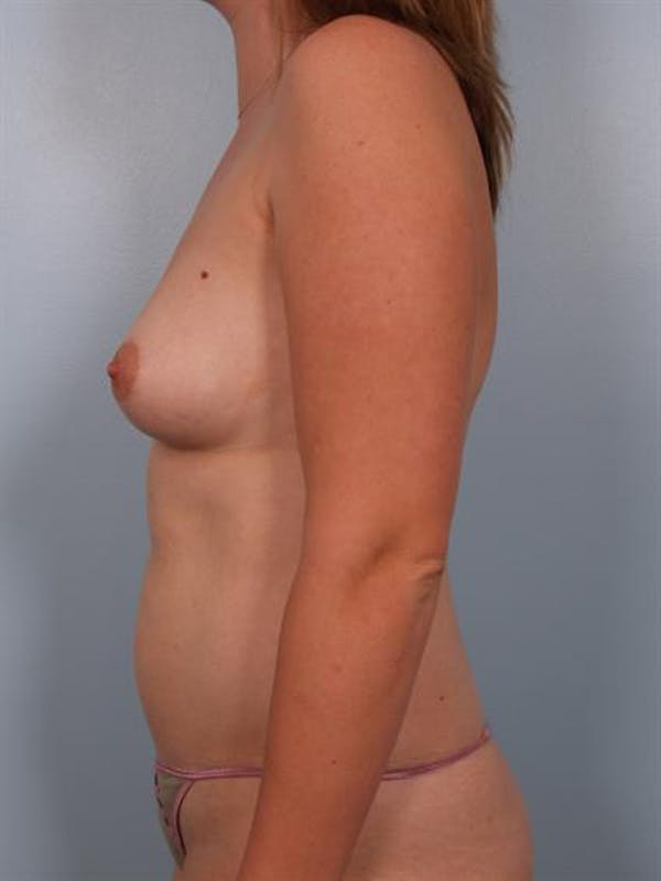 Breast Augmentation Gallery - Patient 1310264 - Image 1