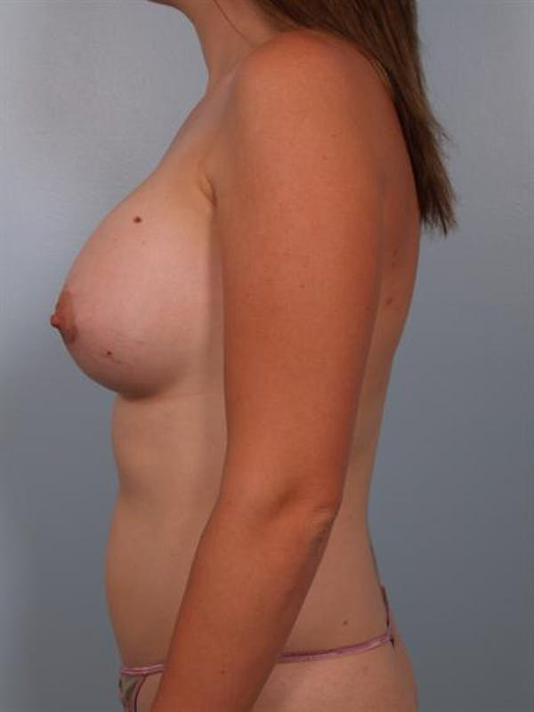 Breast Augmentation Gallery - Patient 1310264 - Image 2