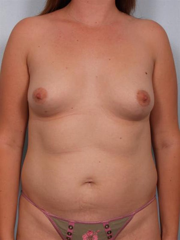 Breast Augmentation Gallery - Patient 1310264 - Image 3
