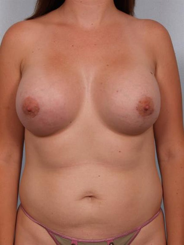 Breast Augmentation Gallery - Patient 1310264 - Image 4