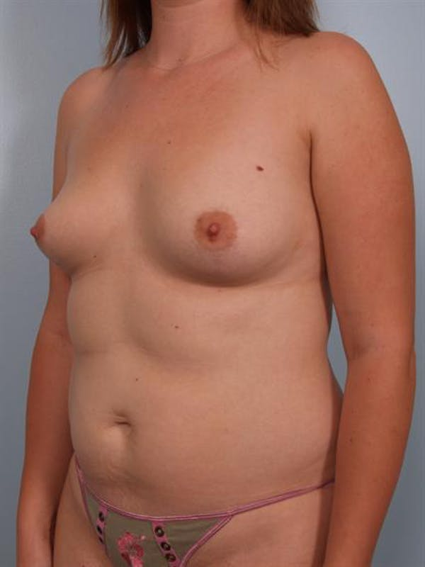 Breast Augmentation Gallery - Patient 1310264 - Image 5