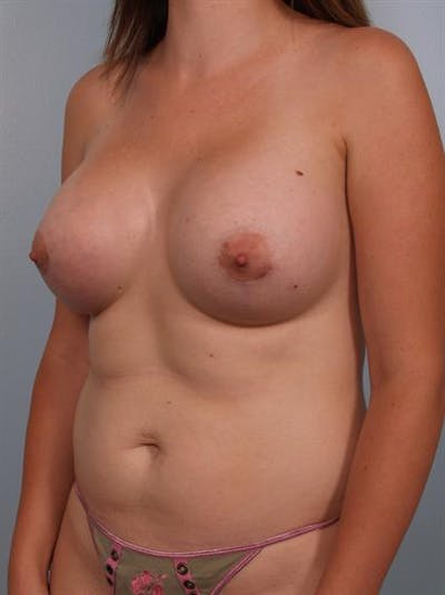 Breast Augmentation Gallery - Patient 1310264 - Image 6