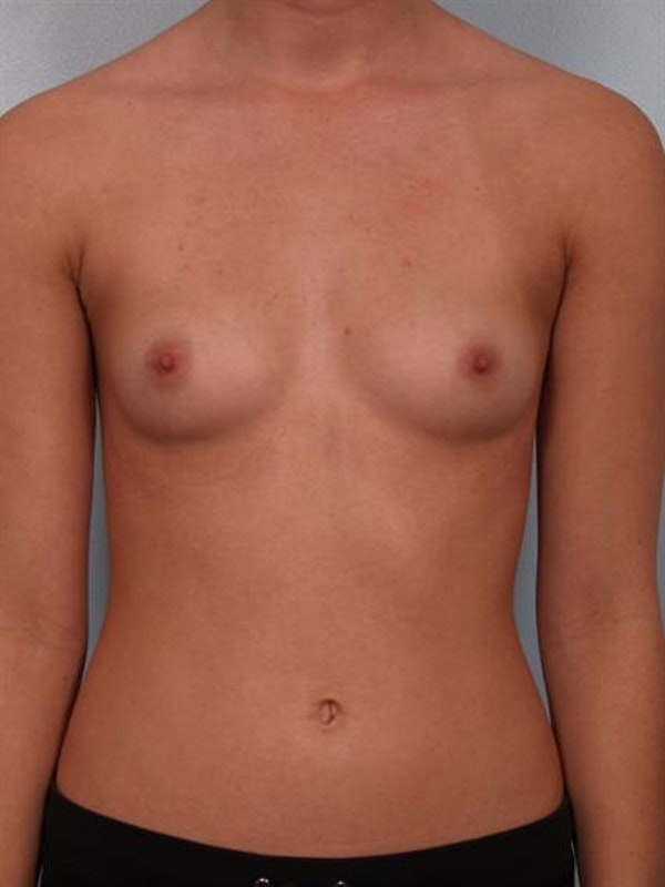 Breast Augmentation Gallery - Patient 1310266 - Image 1