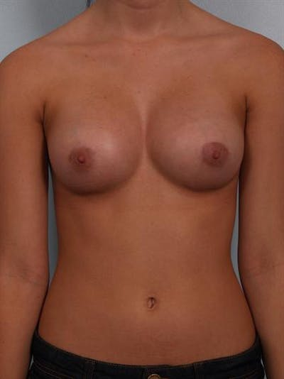 Breast Augmentation Gallery - Patient 1310266 - Image 2