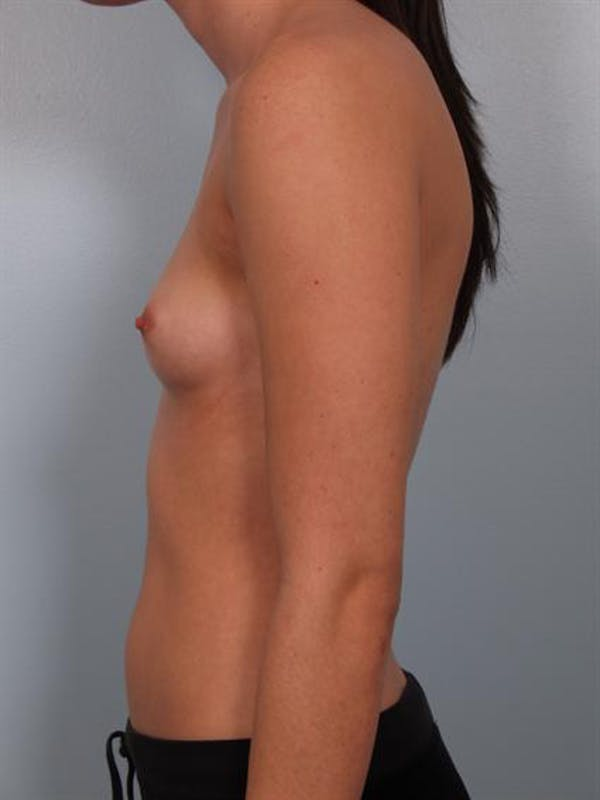 Breast Augmentation Gallery - Patient 1310266 - Image 3