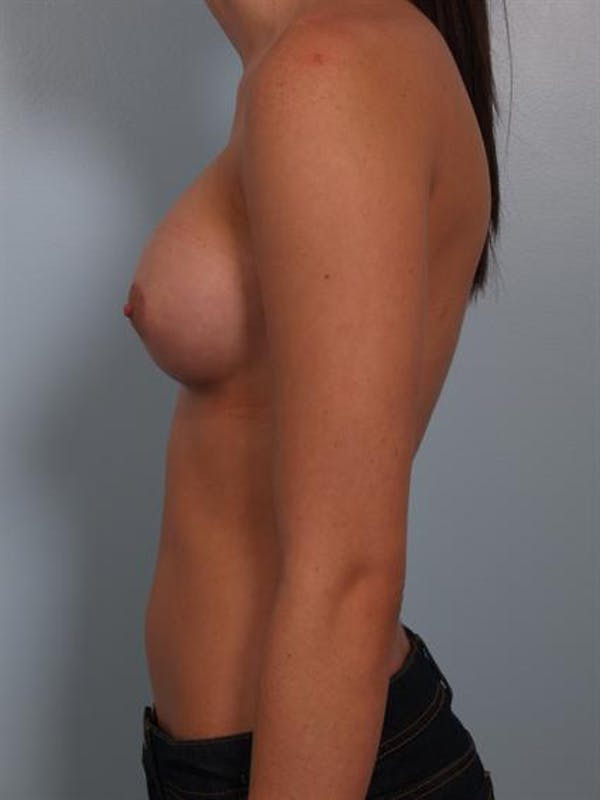Breast Augmentation Gallery - Patient 1310266 - Image 4