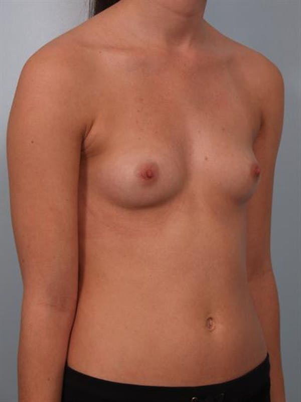 Breast Augmentation Gallery - Patient 1310266 - Image 5