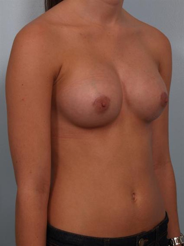 Breast Augmentation Gallery - Patient 1310266 - Image 6