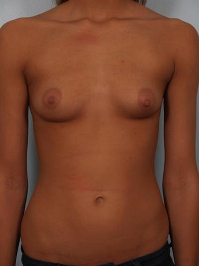 Breast Augmentation Gallery - Patient 1310267 - Image 1