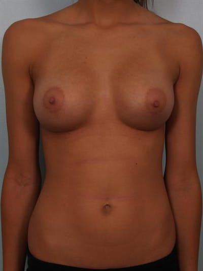Breast Augmentation Gallery - Patient 1310267 - Image 2