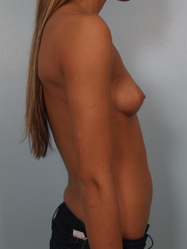 Breast Augmentation Gallery - Patient 1310267 - Image 3