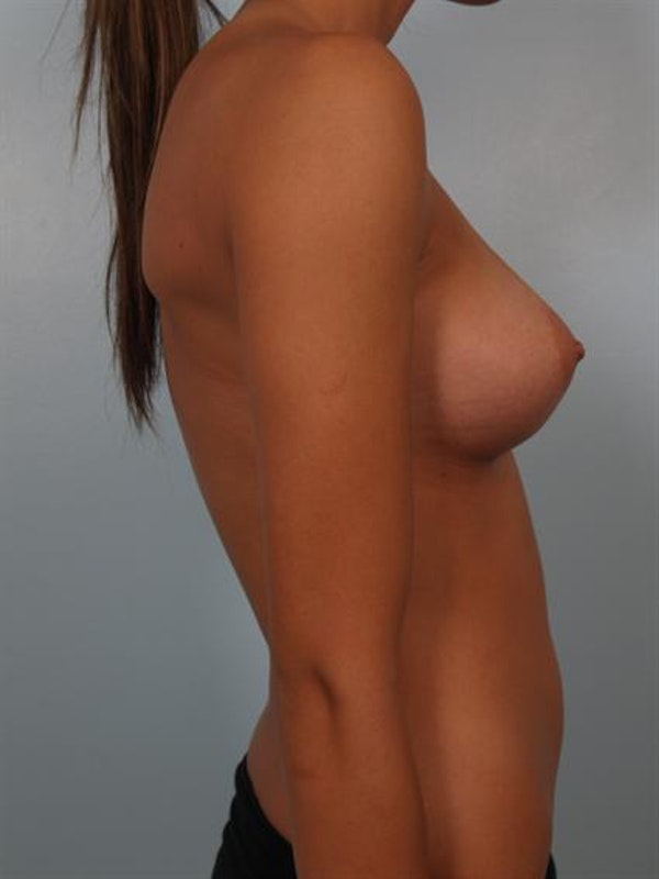 Breast Augmentation Gallery - Patient 1310267 - Image 4