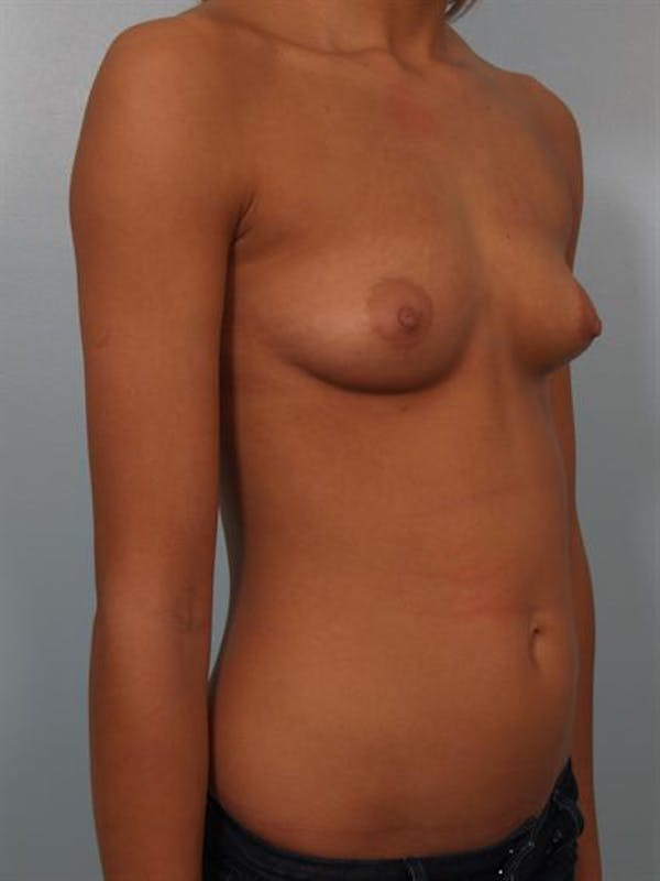 Breast Augmentation Gallery - Patient 1310267 - Image 5