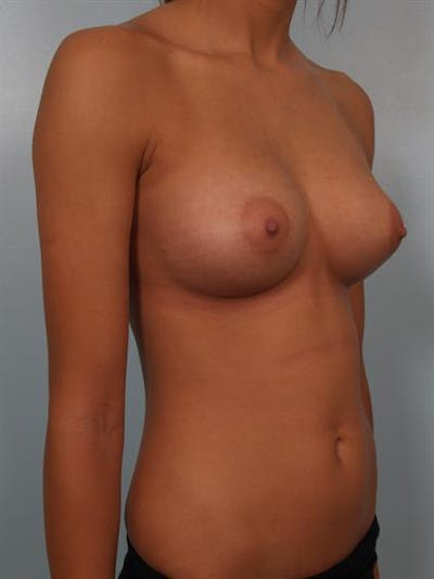 Breast Augmentation Gallery - Patient 1310267 - Image 6