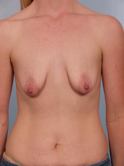 Weird shaped titties