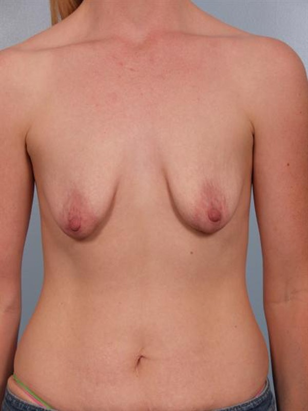 Breast Augmentation Gallery - Patient 1310268 - Image 1