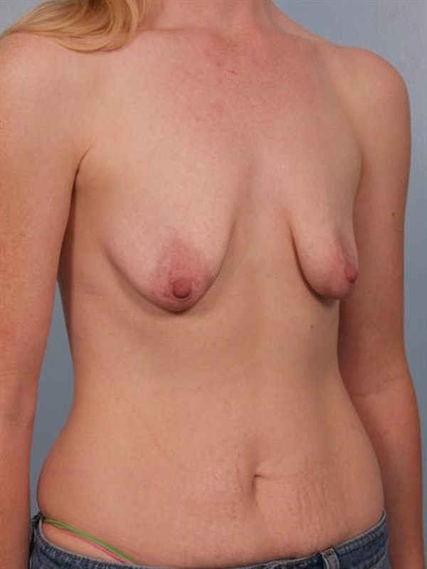 Breast Augmentation Gallery - Patient 1310268 - Image 5