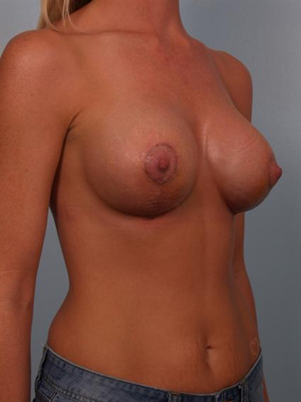 Breast Augmentation Gallery - Patient 1310268 - Image 6