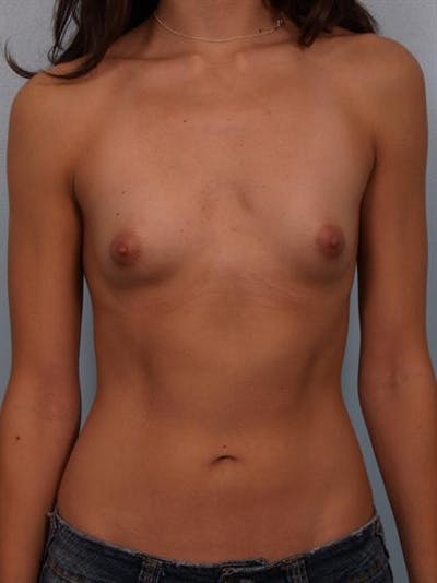 Breast Augmentation Gallery - Patient 1310269 - Image 1
