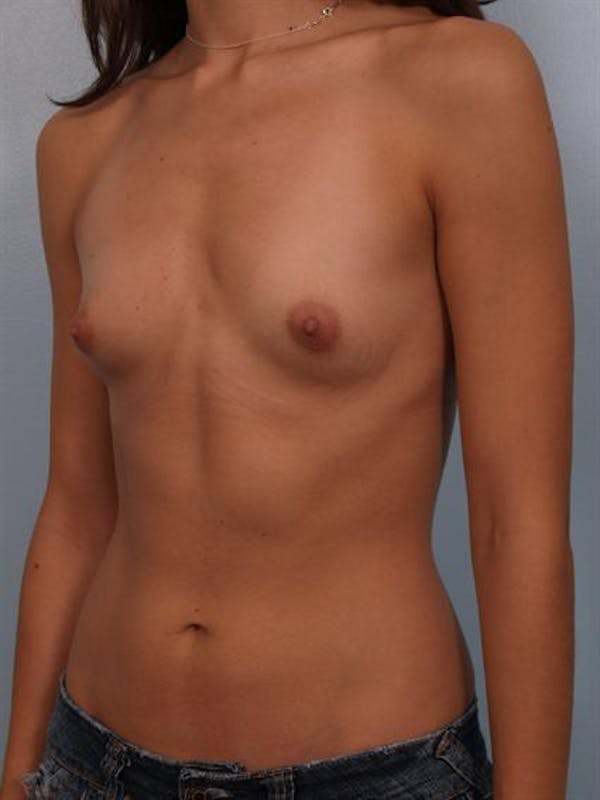 Breast Augmentation Gallery - Patient 1310269 - Image 3