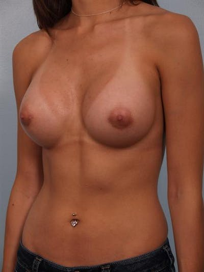 Breast Augmentation Gallery - Patient 1310269 - Image 4