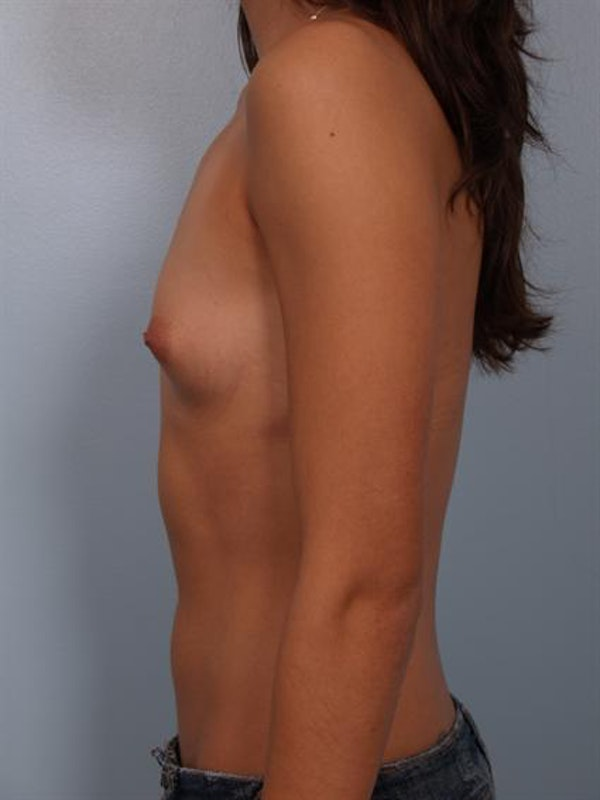 Breast Augmentation Gallery - Patient 1310269 - Image 5