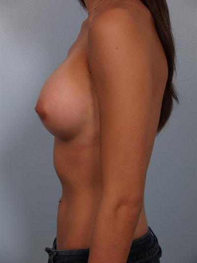 Breast Augmentation Gallery - Patient 1310269 - Image 6