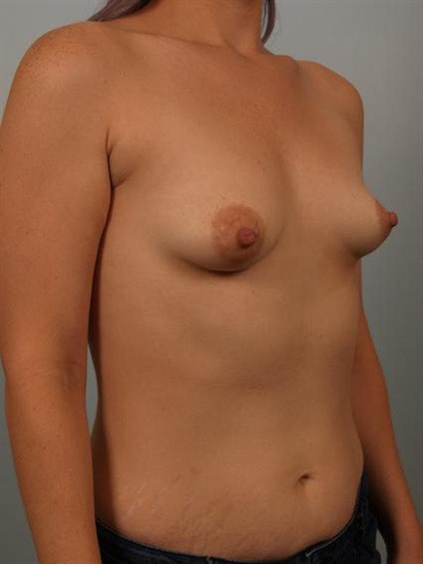 Breast Augmentation Gallery - Patient 1310271 - Image 3