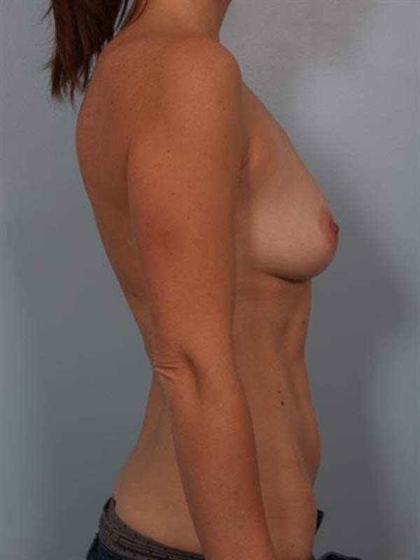 Breast Augmentation Gallery - Patient 1310273 - Image 1