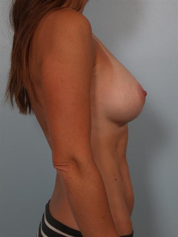 Breast Augmentation Gallery - Patient 1310273 - Image 2