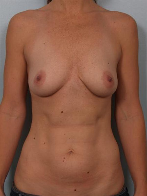 Breast Augmentation Gallery - Patient 1310273 - Image 3