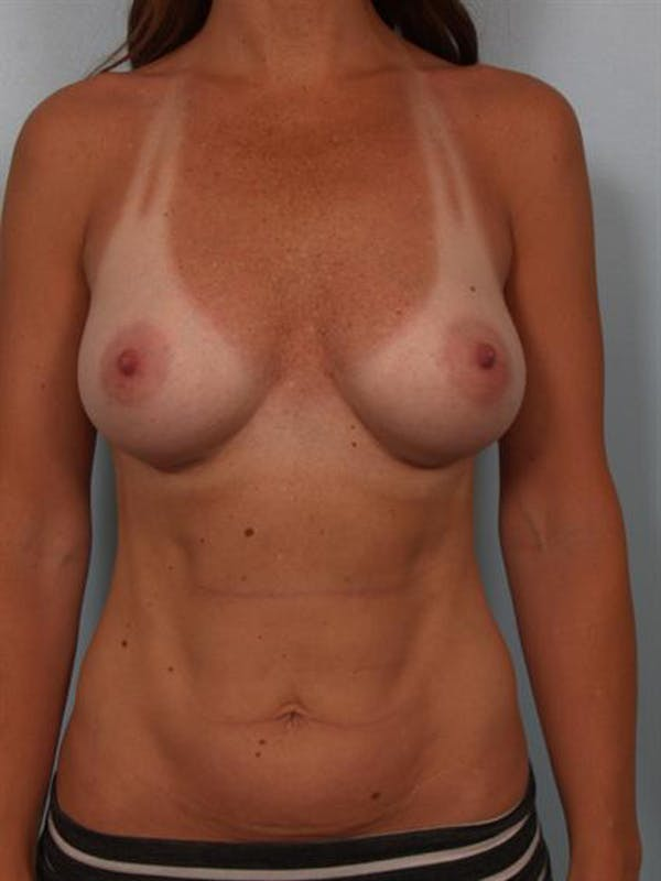 Breast Augmentation Gallery - Patient 1310273 - Image 4