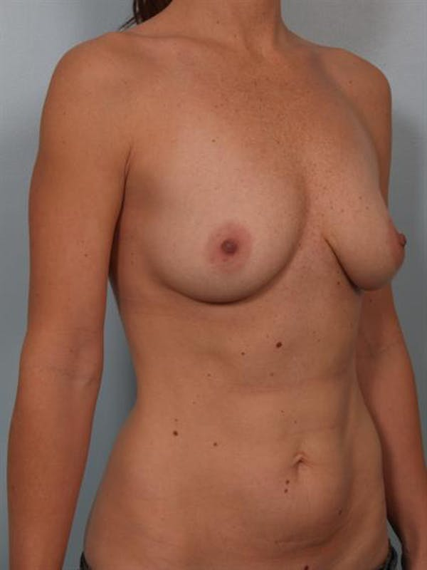 Breast Augmentation Gallery - Patient 1310273 - Image 5