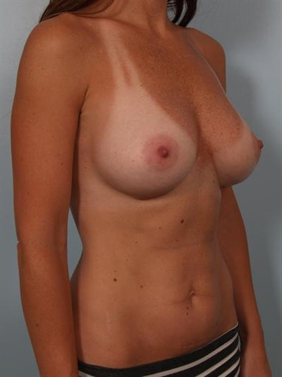 Breast Augmentation Gallery - Patient 1310273 - Image 6