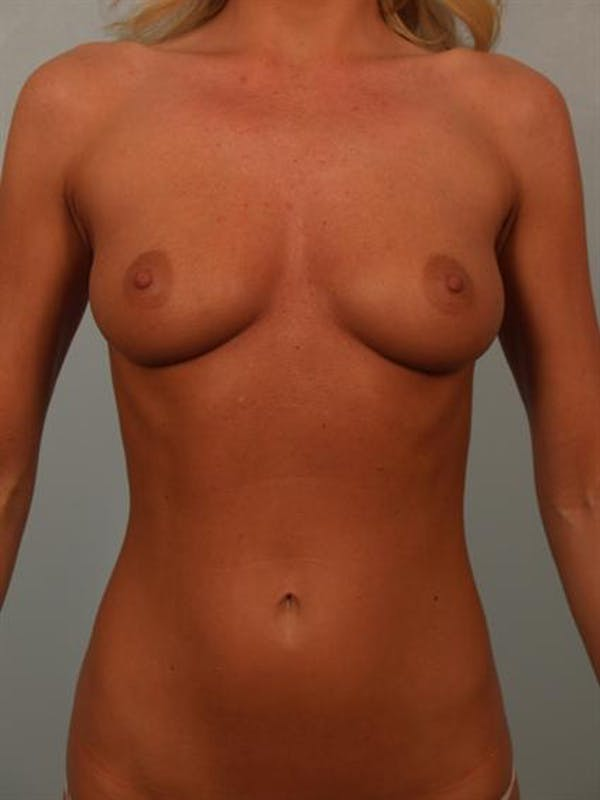 Breast Augmentation Gallery - Patient 1310275 - Image 1