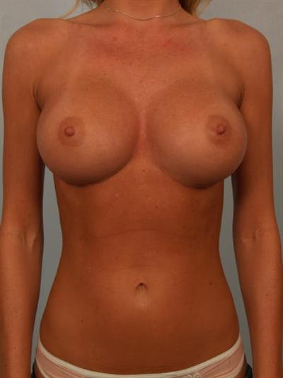 Breast Augmentation Gallery - Patient 1310275 - Image 2