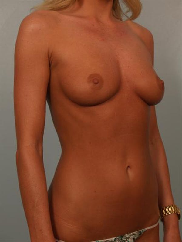 Breast Augmentation Gallery - Patient 1310275 - Image 3
