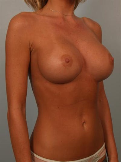 Breast Augmentation Gallery - Patient 1310275 - Image 4