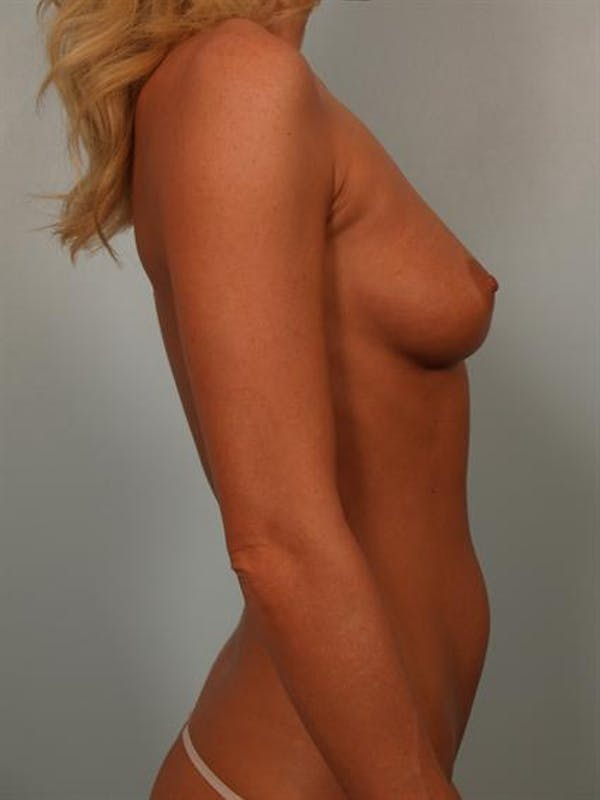 Breast Augmentation Gallery - Patient 1310275 - Image 5