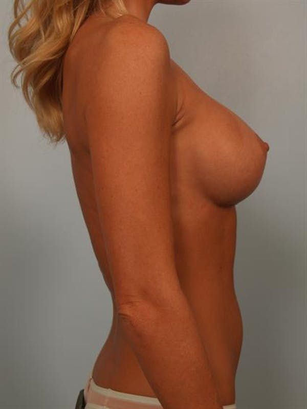 Breast Augmentation Gallery - Patient 1310275 - Image 6