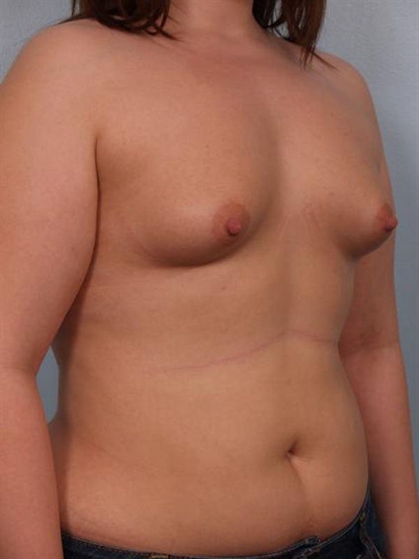 Breast Augmentation Gallery - Patient 1310276 - Image 5