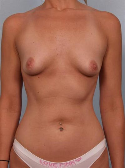 Breast Augmentation Gallery - Patient 1310277 - Image 1