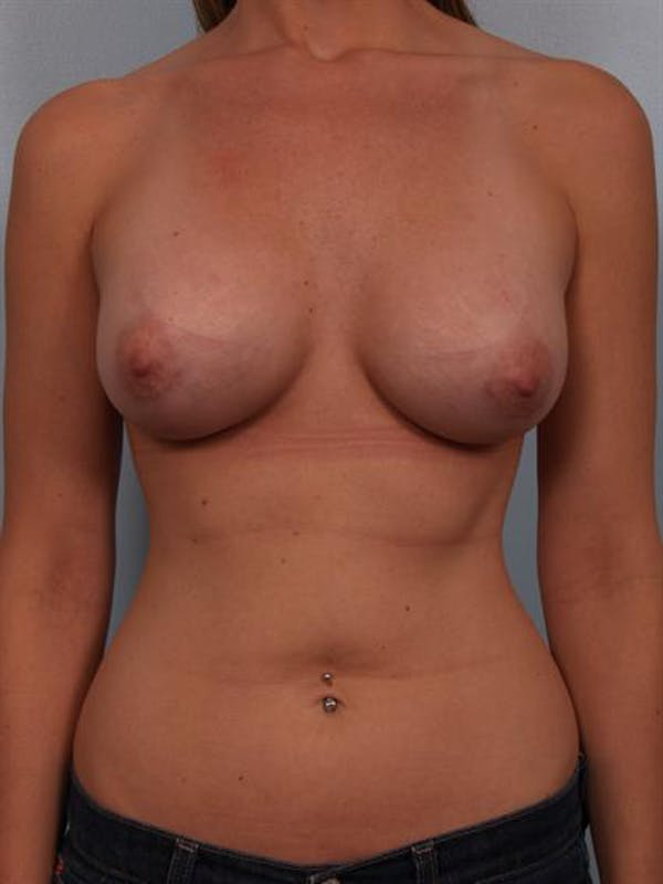 Breast Augmentation Gallery - Patient 1310277 - Image 2